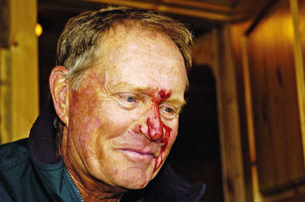 Bloody Jack Nicklaus